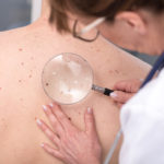Three in Four Adults 70 and Older Have at Least One Skin Disease